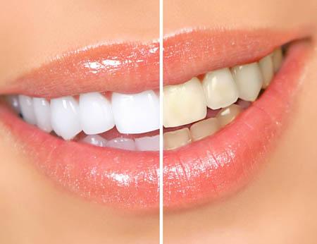 10 найкращих рецептів відбілювання зубів в домашніх умовах - як відбілити зуби вдома?