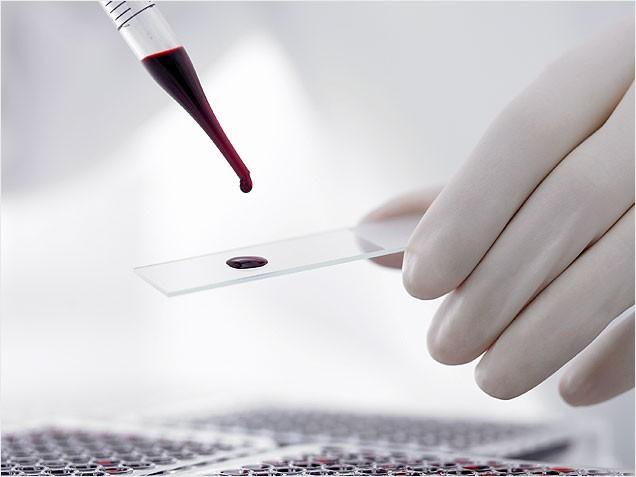 Аналіз крові: розшифровка і норма