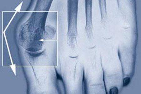 Болить кісточка на нозі: як позбутися дискомфорту?