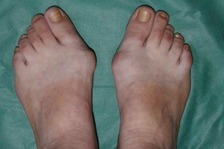 Що робити, якщо зростає кісточка біля великого пальця ноги?