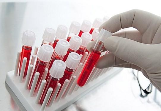 Як підвищити рівень гемоглобіну в крові?
