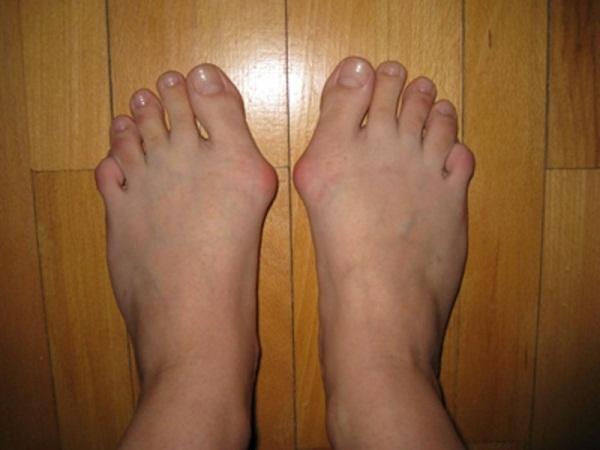 Кісточки на ногах: як лікувати? Кісточки на ногах: як формуються?