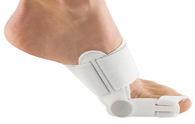 Кісточки на ногах: як лікувати?