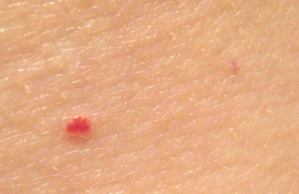 Червоні точки на ногах: причини появи і лікування. Як прибрати червоні точки на ногах після гоління?