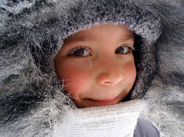 Обмороження щоки у дитини: що робити? Ознаки обмороження, профілактика та перша допомога