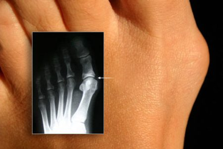 Операція з видалення кісточки на ногах і відновлення після неї