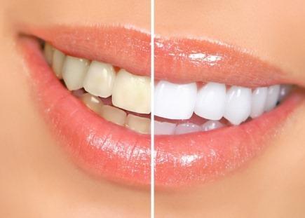 Відбілювання зубів народними засобами в домашніх умовах