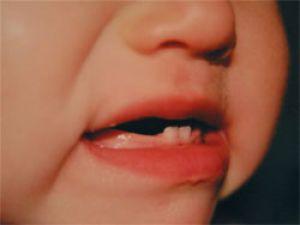 Перші зубки дитини