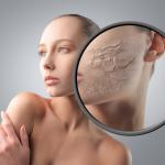 Чому шкіра суха - основні причини сухої шкіри обличчя і тіла