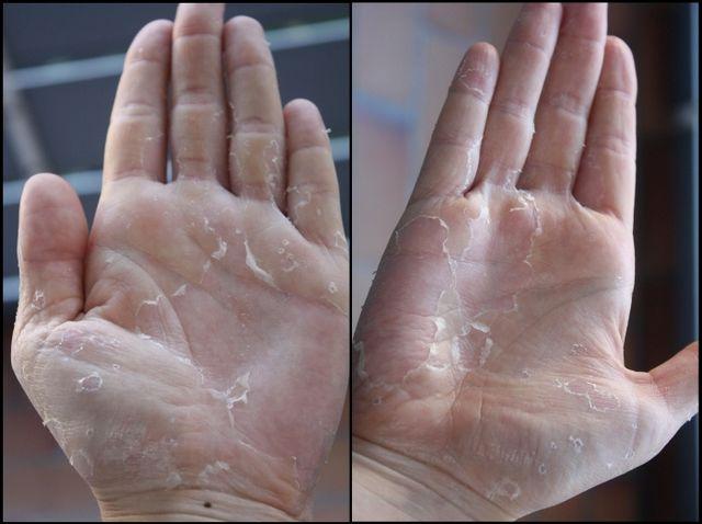 Лущення шкіри на долонях