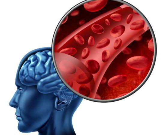 Симптоми і ознаки мікроінсульту