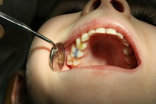 Скільки молочних зубів повинно бути у дітей?