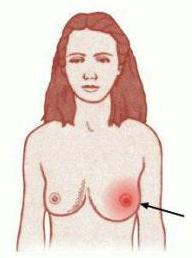 Тріщіні на сосках - зворотна сторона грудного вигодовування