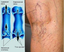 Варикозне розширення вен - як полегшити ноги