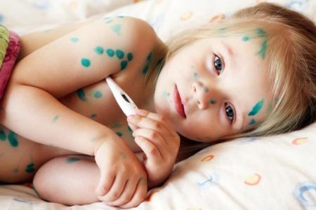 Вітрянка у дитини: лікувати або & # 171-саме пройде & # 187-?